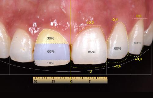 Clínica boutique Dental Madrid – diseño de la sonrisa - Análisis que realizamos para ver que opciones de tratamientos podemos darte para cambiar tu estética dental y mejorarla
